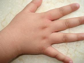 治疗儿童牛皮癣时应该注意些什么