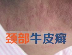 哪些原因会导致颈部牛皮癣病发