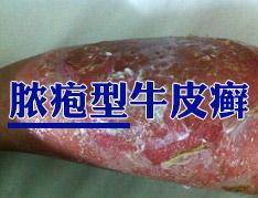 脓疱型牛皮癣的治疗方法有哪些