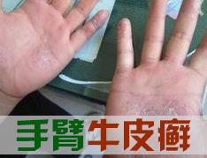 手臂牛皮癣有哪些症状