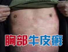 胸部牛皮癣患者该注意什么